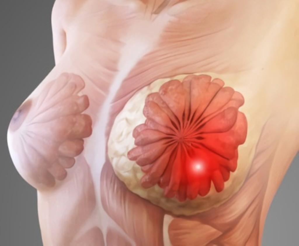 женская бользнь манаспотия грудии как лечить видео